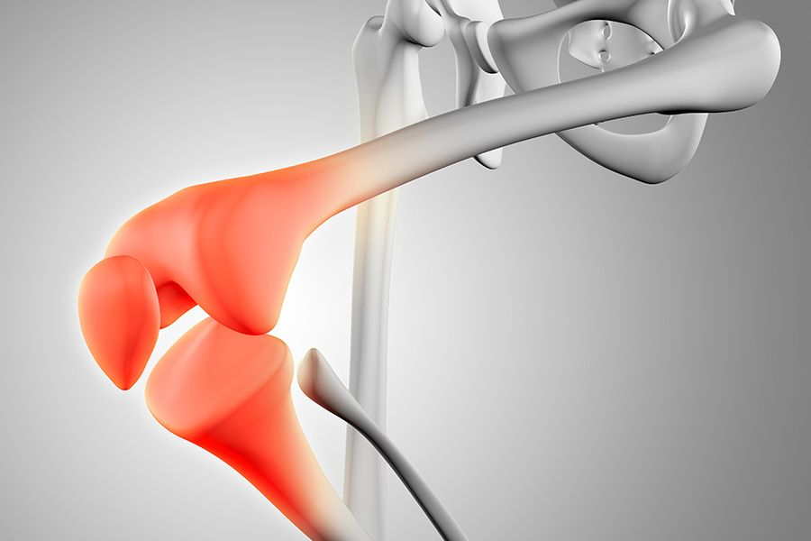 Ways to improve Bone Health after Age 30 Osteoporosis