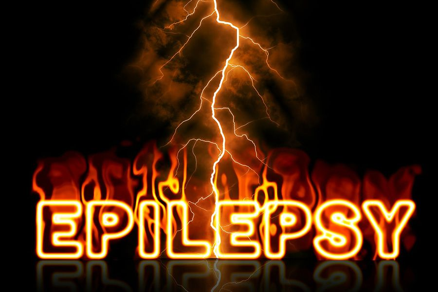 Health news epilepsy signs symptoms treatment