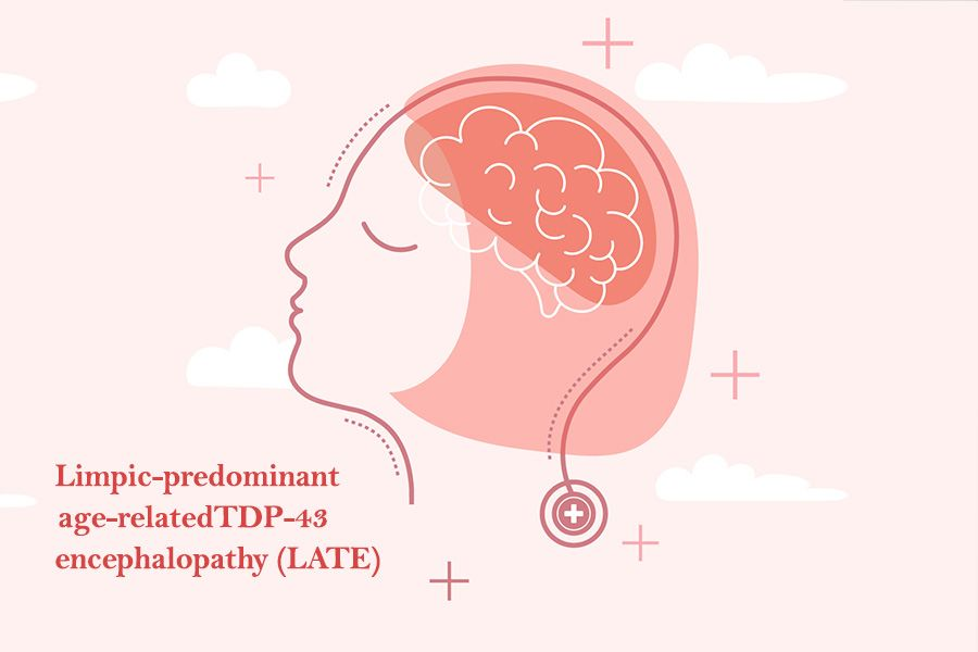 New brain disorder Limbic predominant Age related TDP43 Encephalopathy, or LATE
