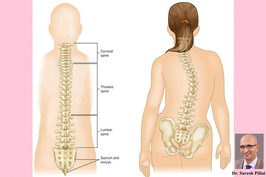 Idiopathic Scoliosis in Adolescents By Dr suresh pillai