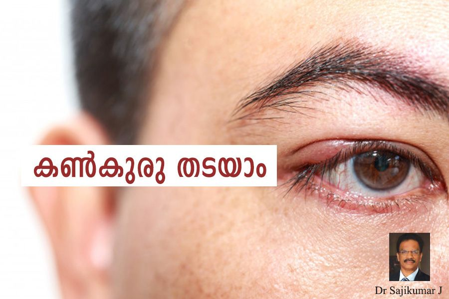 How to prevent eye infection article by Dr Sajikumar J