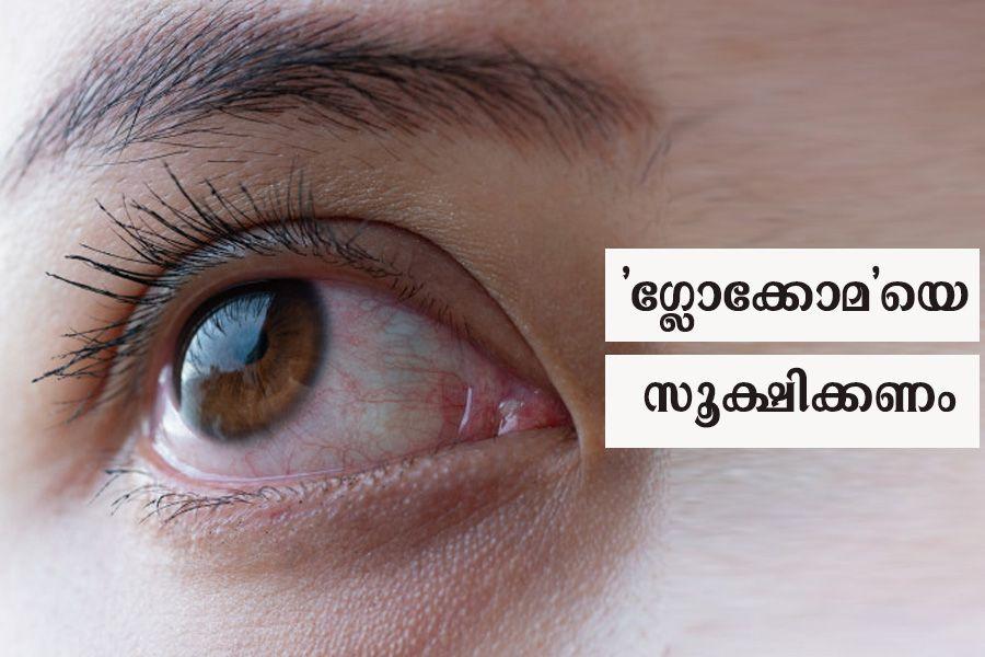 Beware of glaucoma